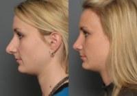 Особенности пластической коррекции носа