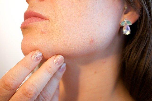 Где принимает дерматолог в Чехове?
